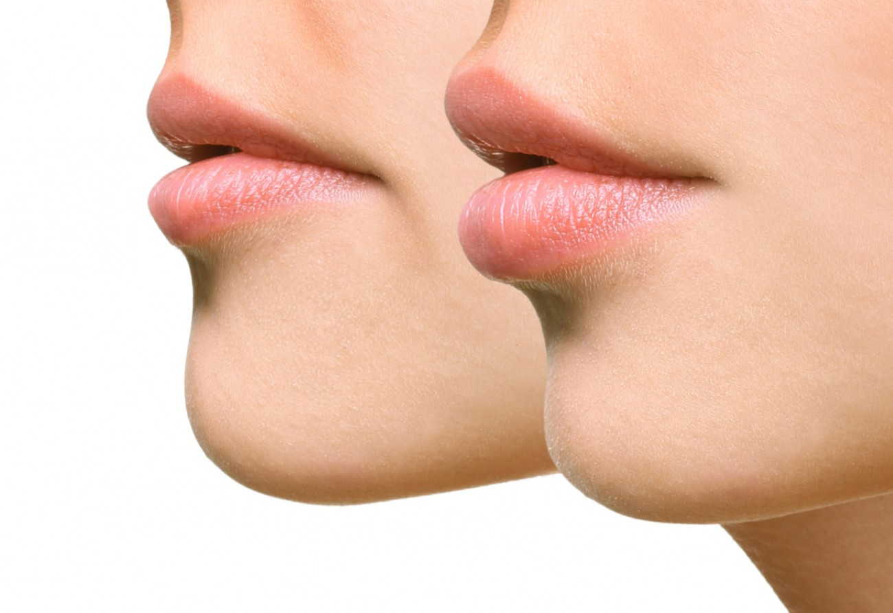 hypnomedica_lippenvergrößerung